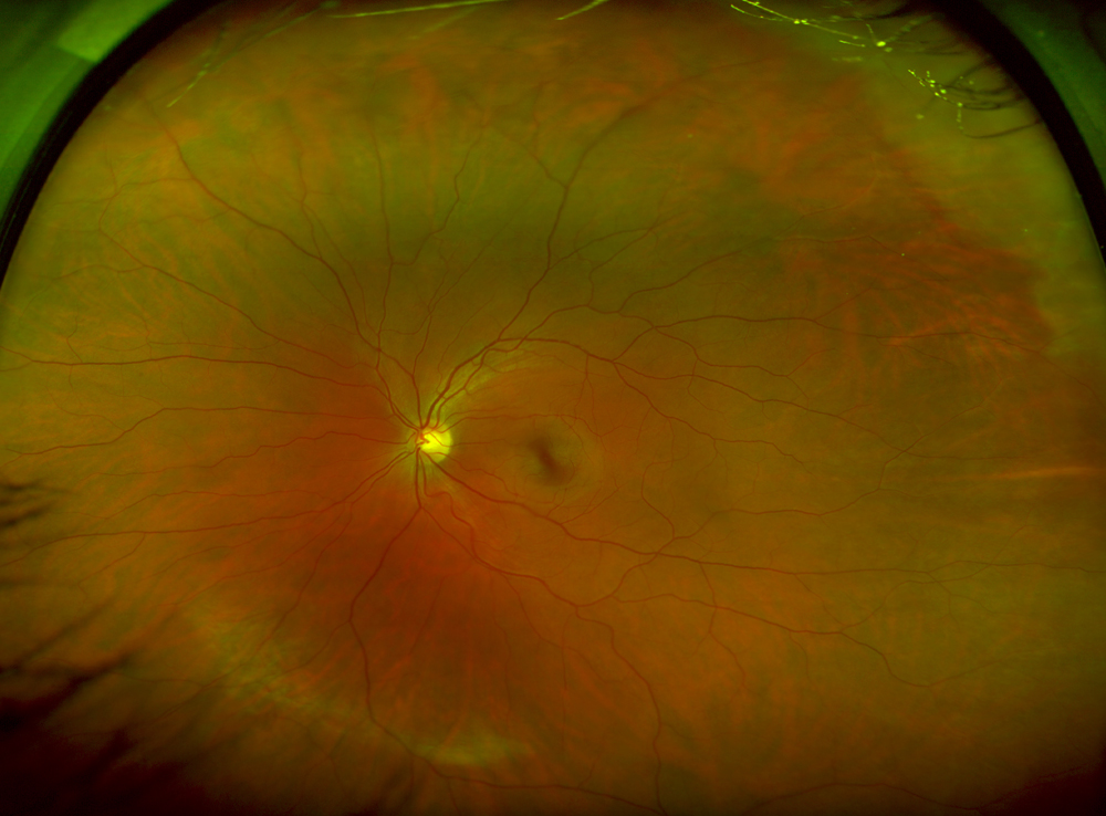 Retina within eye